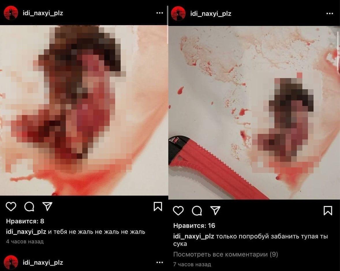 Феминистка опубликовала в Instagram расчленение хомяка